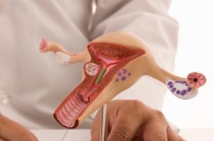 Infecciones del Sistema Reproductor Femenino